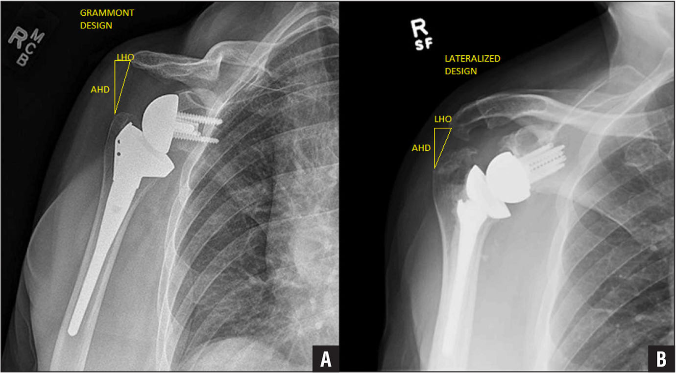 Medialized Versus Lateralized Center of Rotation in Reverse Shoulder ...