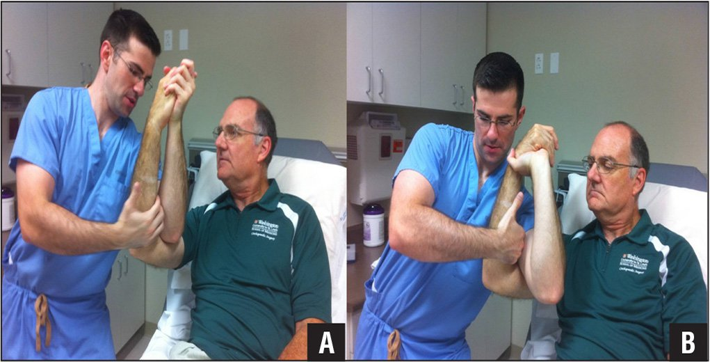 Grasping the patient's hand and placing the distraction hand on the proximal forearm (A). The physician can either grasp the patient's hand to provide distraction or radially deviate the hand to grab the patient's wrist, thereby providing more traction with distraction of the right hand (B).