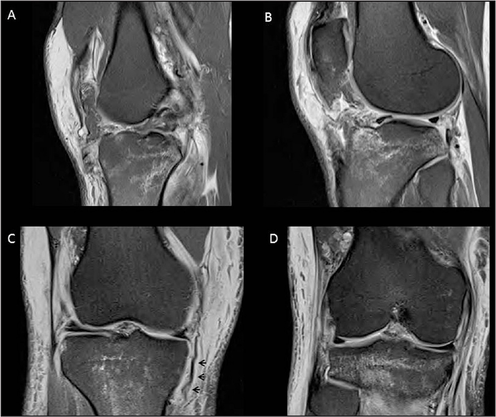 Magnetic resonance imaging obtained for Patient 1. T2 sagittal cut showing an anterior cruciate ligament rupture (A). T2 sagittal cut showing a patellar tendon rupture (B). T2 coronal cut showing a medial collateral ligament tear (C). Arrows indicate the tibial-based detachment of the medial collateral ligament tear. T2 coronal cut showing a posterolateral corner injury (D).