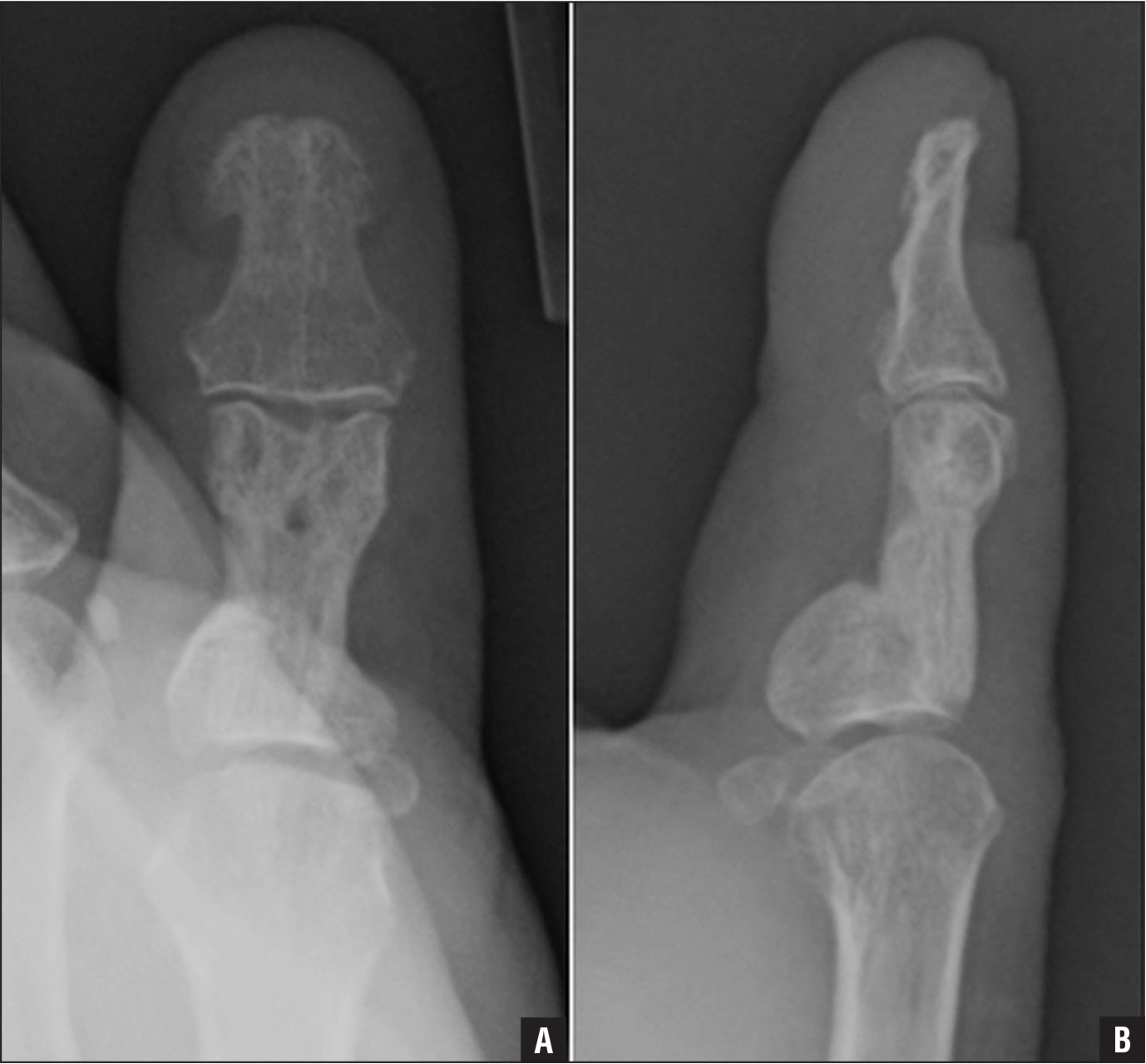 Posteroanterior (A) and lateral (B) radiographs at 6 months showing solid union.