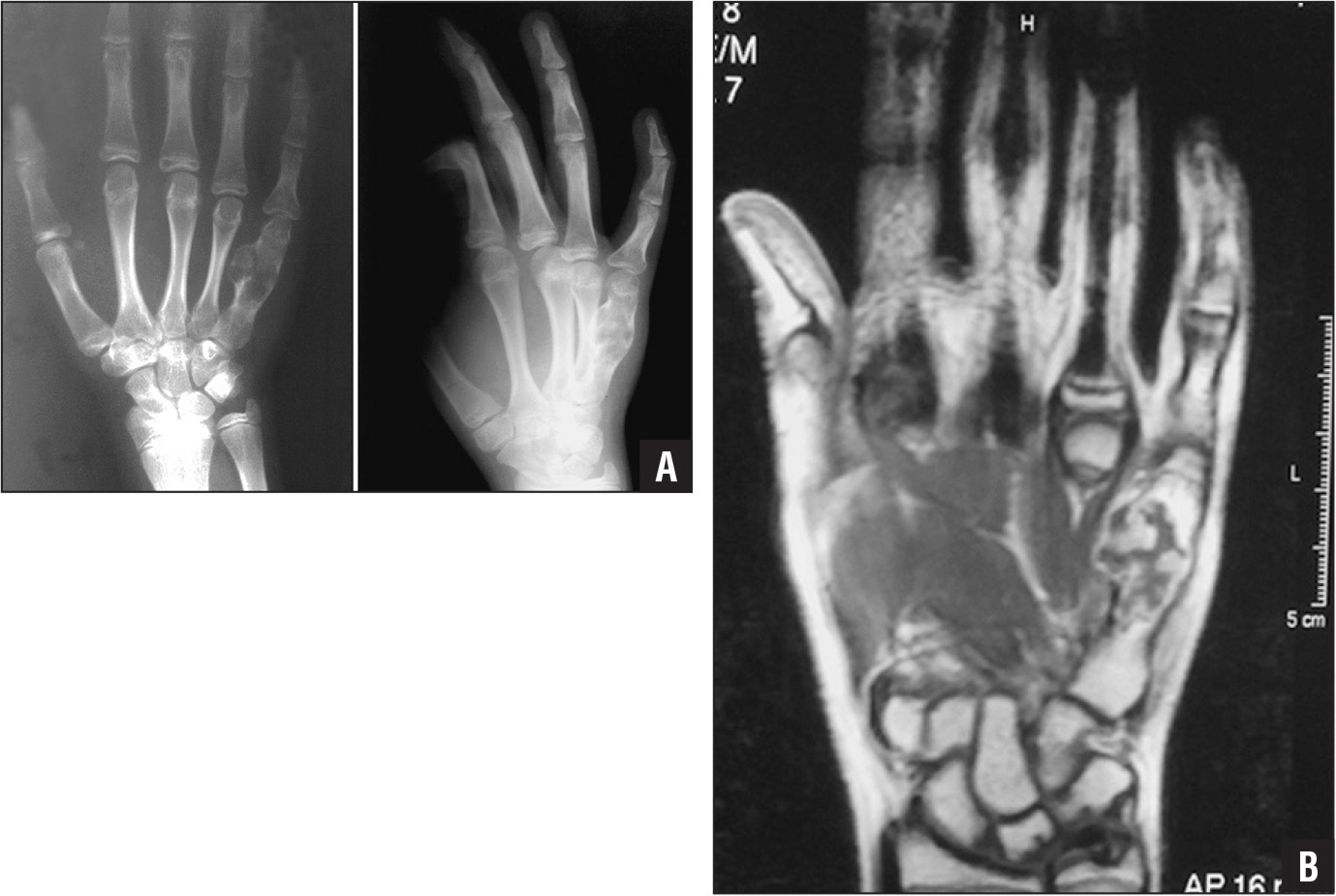 Posteroanterior (left) and oblique (right) radiographs showing an expansive radiolucent mass in the fifth metacarpal, with cortical thinning and pathologic fracture and a radiolucent area in the middle phalanx of the fourth digit, 3 years after the second curettage and autogenous iliac bone grafting (A). A T1-weighted coronal magnetic resonance image showing a 23×18×16-mm expansive cartilaginous matrix of lobules with septae that have hyperintense signal intensity in the fifth metacarpal with pathologic fracture (B).
