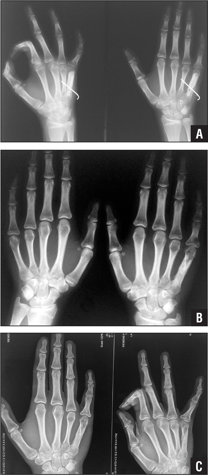 Oblique (left) and posteroanterior (right) postoperative radiographs showing a strut allograft fibular bone segment at 2 months (A). Posteroanterior radiographs of both hands at 4 years (B) showing shortening of the proximal phalanx of the fifth digit and radiolucent areas in the middle phalanx of the fourth digit and the proximal phalanx of the fifth digit. Posteroanterior (left) and oblique (right) radiographs obtained 14 years postoperatively showing excellent incorporation of the allograft bone, with no recurrence of the tumor (C).