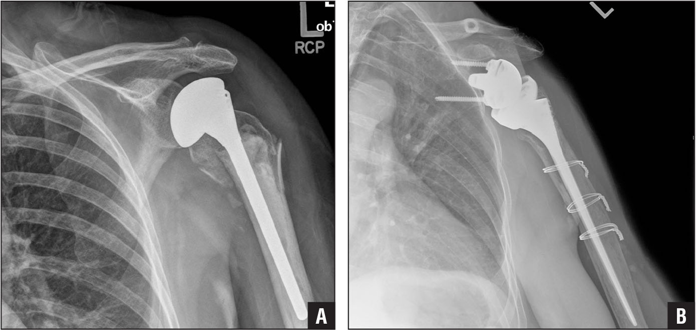 Preoperative anteroposterior radiograph of the left shoulder in a patient who had a cemented hemiarthroplasty placed for a comminuted proximal humerus fracture with a humeral stem that was not convertible to reverse shoulder arthroplasty (A). High stem placement resulted in non-anatomic position of the tuberosities around the neck of the humeral stem that led to significant pain and disability. When the patient underwent revision to reverse shoulder arthroplasty, removal of the cemented stem was needed to place a humeral component that would mate with a glenosphere as demonstrated on the postoperative radiograph. An osteotomy was required to remove the stem, resulting in additional surgical dissection, increased blood loss, and increased operative time (B).