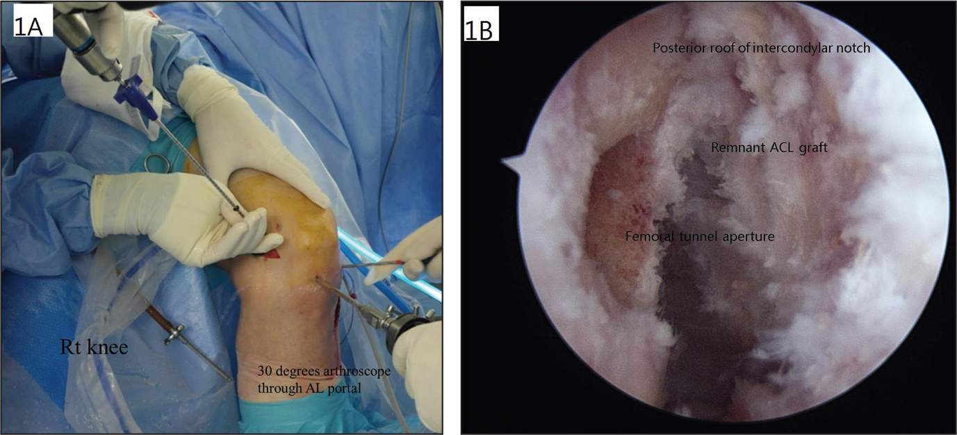 Photograph of formation of the femoral tunnel created under visualization through the anterolateral (AL) portal in the right (Rt) knee (A). The arthroscope is inserted through the anteromedial portal, and the guide is inserted through the AL portal (B). Abbreviation: ACL, anterior cruciate ligament.