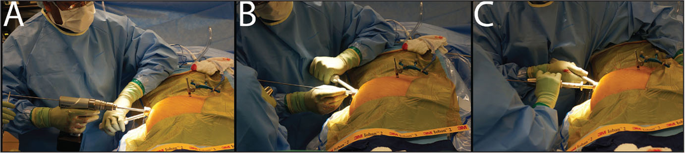 Drilling over the guidewire (A). Placing the implant over the guidewire (B). Seating the implant with the impactor (C).