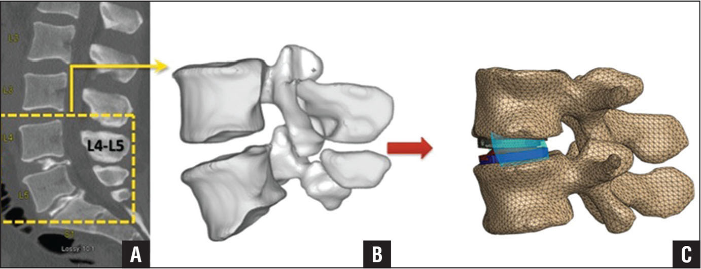 Patient computed tomography files (A) were segmented and used to generate patient-specific finite element analysis models of the motion segment (B) for analysis with virtual implantation (C) of a ProDisc-L (DePuy Synthes, Raynham, Massachusetts) total disk replacement.