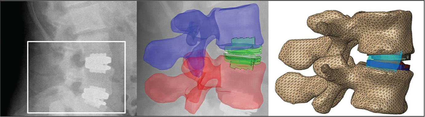 Postoperative standing radiograph (left), 3-dimensional model overlay on radiograph to determine location of implant (center), and implanted finite element analysis model of the operative level used for analysis (right).