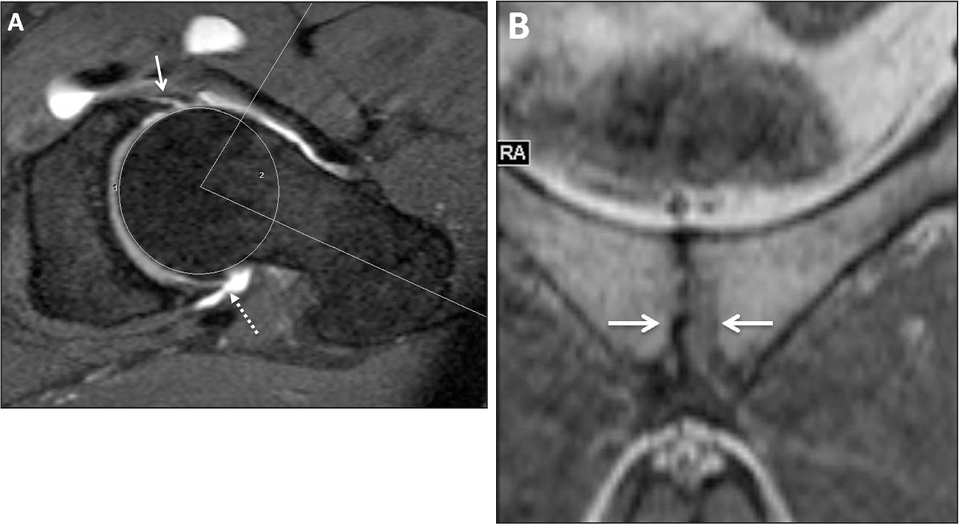 Axial oblique fat-saturated T1-weighted image of a magnetic resonance arthrogram showing signs of femoroacetabular impingement, including an increased alpha angle (82°), an anterior labral tear (arrow), and small marginal osteophytes (dashed arrow) in a 46-year-old man with chronic left hip pain (A). Coronal T1-weighted image showing mild osteitis pubis with osseous irregularity on both sides of the symphysis pubis (arrows) (B).