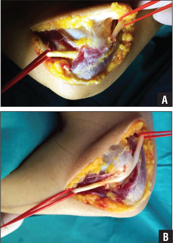 Anconeus Epitrochlearis Muscle Causing Ulnar Neuropathy at the Elbow ...