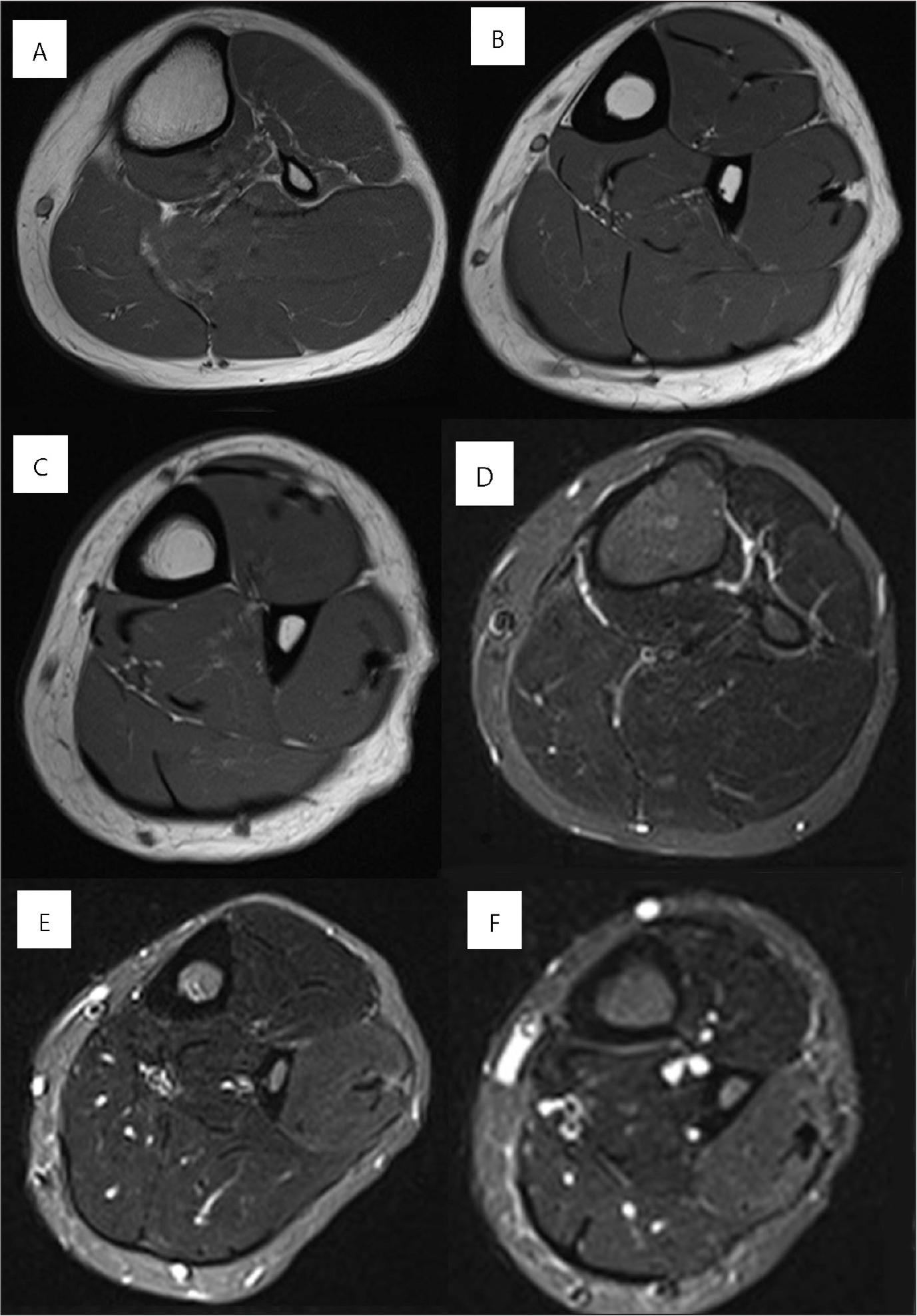 Preexercise axial magnetic resonance images of the proximal calf (A), mid-calf (B), and distal calf (C). Postexercise axial magnetic resonance images of the proximal calf (D), mid-calf (E), and distal calf (F). The lateral compartment of the mid-calf to the distal calf, where the patient felt pain, showed significant high signal intensity. However, the proximal part of the lateral compartment, where the patient had no pain, did not show high signal intensity.