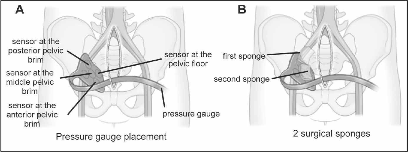 Scheme depicting the pressure gauge and surgical procedure. Pressure gauge installation (A). After creating space for the retroperitoneal pelvic packing procedure, the pressure gauge was placed along the pelvic wall so that the sensor line overlapped diagonally with the pelvic brim. One sensor was placed along the abdominal wall, outside the pelvic cavity. Surgical sponges were inserted from posterior to anterior (B).