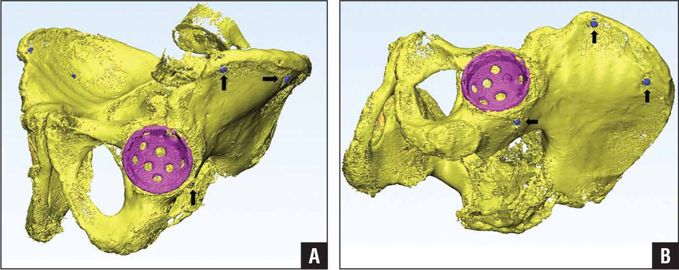 Computed tomography scans were used to create 3-dimensional renderings. Anterolateral (A) and supine anterolateral (B) representations are illustrated. The implanted acetabular cup (purple) and fiducial screws (arrows) were used to gather coordinate data.