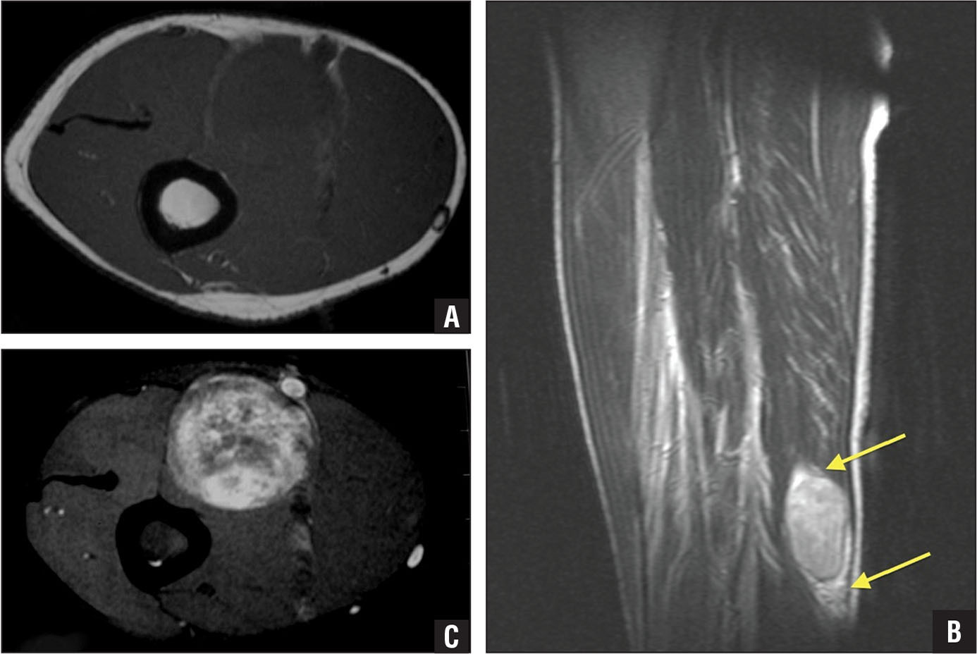 Preoperative axial T1-weighted magnetic resonance image of a schwannoma displaying a split fat sign and intermediate intensity (A). Preoperative sagittal T2-weighted turbo spin-echo magnetic resonance image of a schwannoma displaying a split fat sign. The 2 arrows indicate the fat at the upper and lower poles of the lesion (B). Preoperative axial T2-weighted magnetic resonance image displaying a schwannoma with heterogeneous appearance typical of most schwannomas in this study. The mass is predominantly hyperintense (Antoni B) with scattered hypointense (Antoni A) areas (C).