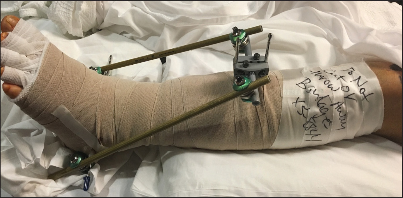 Photograph of a patient with a pilon fracture staged with an external fixator in combination with compression wrapping for lymphedema management.