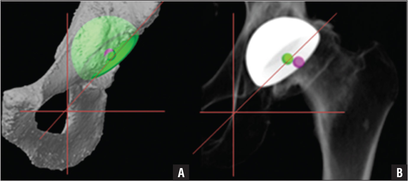 Digital 3-dimensional template measurements (A) and anteroposterior radiograph (B) showing abduction angles associated with position of the superior lateral acetabular rim.