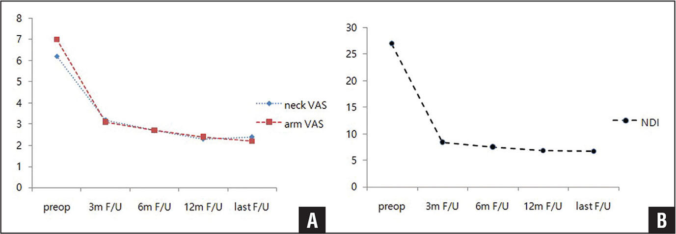At the final follow-up (F/U) examination, the neck and arm visual analog scale (VAS) scores (A) and the Neck Disability Index (NDI) (B) improved significantly (P<.05). Abbreviation: preop, preoperative.