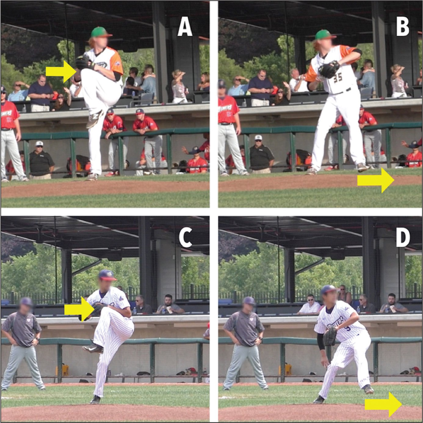 Representative example of components assessed in the mass and momentum category. A pitcher in the lower scoring position with a minimal angle showing minimal forward push-off from the drive extremity (A, B). A pitcher in the higher scoring position with the drive leg at a larger angle indicating that the lower body and pelvis are moving toward the target (C, D). Arrows represent the points at which these positions are assessed.