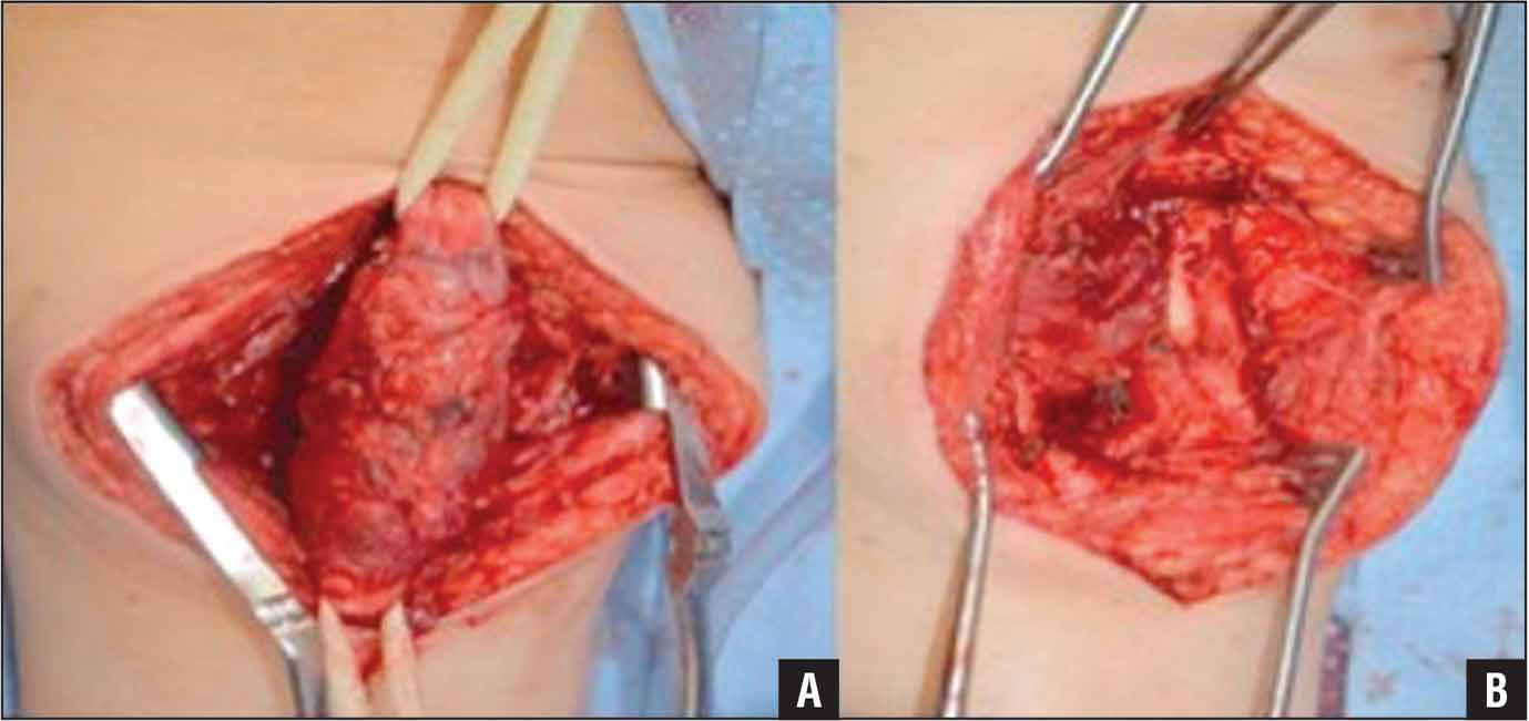Glomus Tumor Of The Sciatic Nerve An Extraspinal Cause Of Sciatica