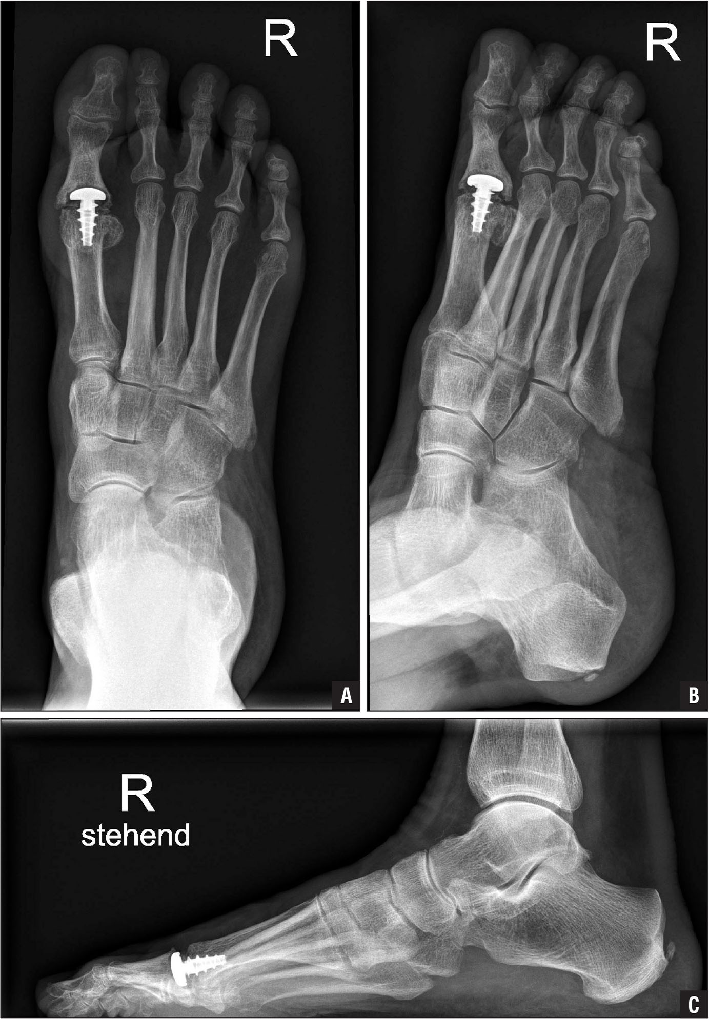 A 77-year-old patient 4 years after implantation of a first metatarsophalangeal classic HemiCAP (Arthrosurface Inc, Franklin, Massachusetts) hemiarthroplasty prosthesis without dorsal flange. The patient was very satisfied with the postoperative functional result and had no pain. Standard weight-bearing dorsoplantar (A), oblique (B), and lateral (C) postoperative radiographs of the foot showed significant osseous dysplastic changes of the proximal phalangeal base caused by the resurfacing implant of the metatarsal head.