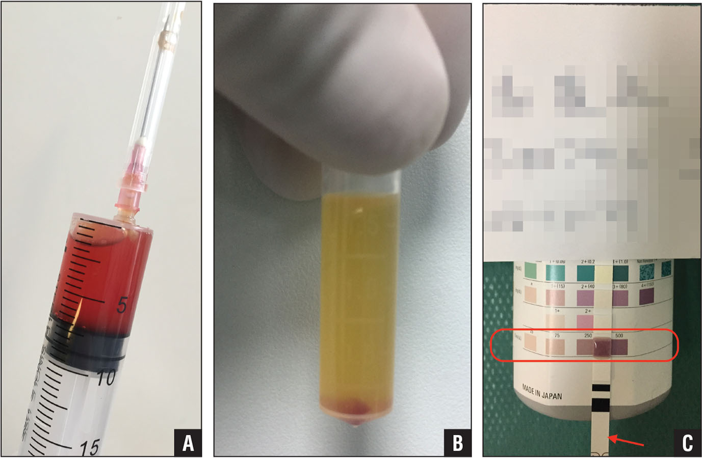 Blood-stained synovial fluid aspirated from a joint, which could not be used for the leukocyte esterase (LE) strip test directly (A). Erythrocytes were separated by centrifugation. Supernatant was left for the LE strip test (B). After 2 to 3 minutes, the LE strip test pad (arrow) was dark purple (500), indicating a positive result (C).
