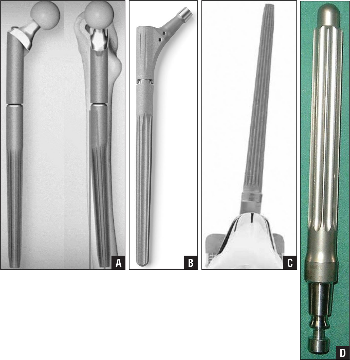 Tapered (2°) fluted stem with 3° antecurvation (MP reconstruction prothesis; Waldemar Link GmbH & Co KG, Hamburg, Germany) (A). Straight tapered (2°) stem with longitudinal sharp ribs (Revitan Hip System; Zimmer Biomet, Warsaw, Indiana) (B). Tapered (2°) stem with longitudinal fluting (Endo-Modell SL; Waldemar Link GmbH & Co KG) (C). Straight cylindrical stem (NexGen; Zimmer Biomet) (D). (All photographs courtesy of Waldemar Link GmbH & Co KG and Zimmer Biomet.)
