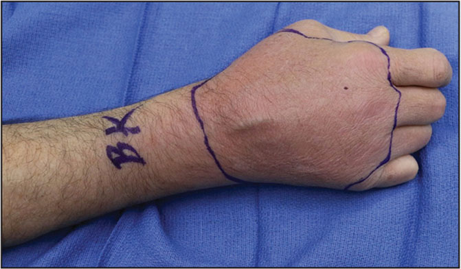 A 58-year-old intravenous opioid abuser presented with a 7-day history of right dorsal hand pain, swelling, erythema, and tenderness to palpation that extended to the distal forearm without fluctuance and with sensation and perfusion intact.