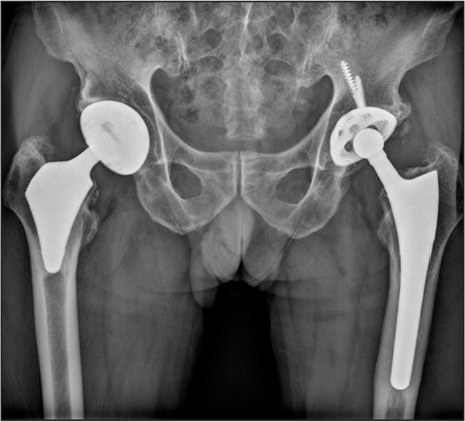 Anteroposterior radiograph 6 years postoperatively of an 85-year-old man with osteoarthritis of both hips. The ultra-short anatomic femoral stem (right hip) and the profile cementless femoral stem (left hip) are rigidly fixed in a satisfactory position in both hips.