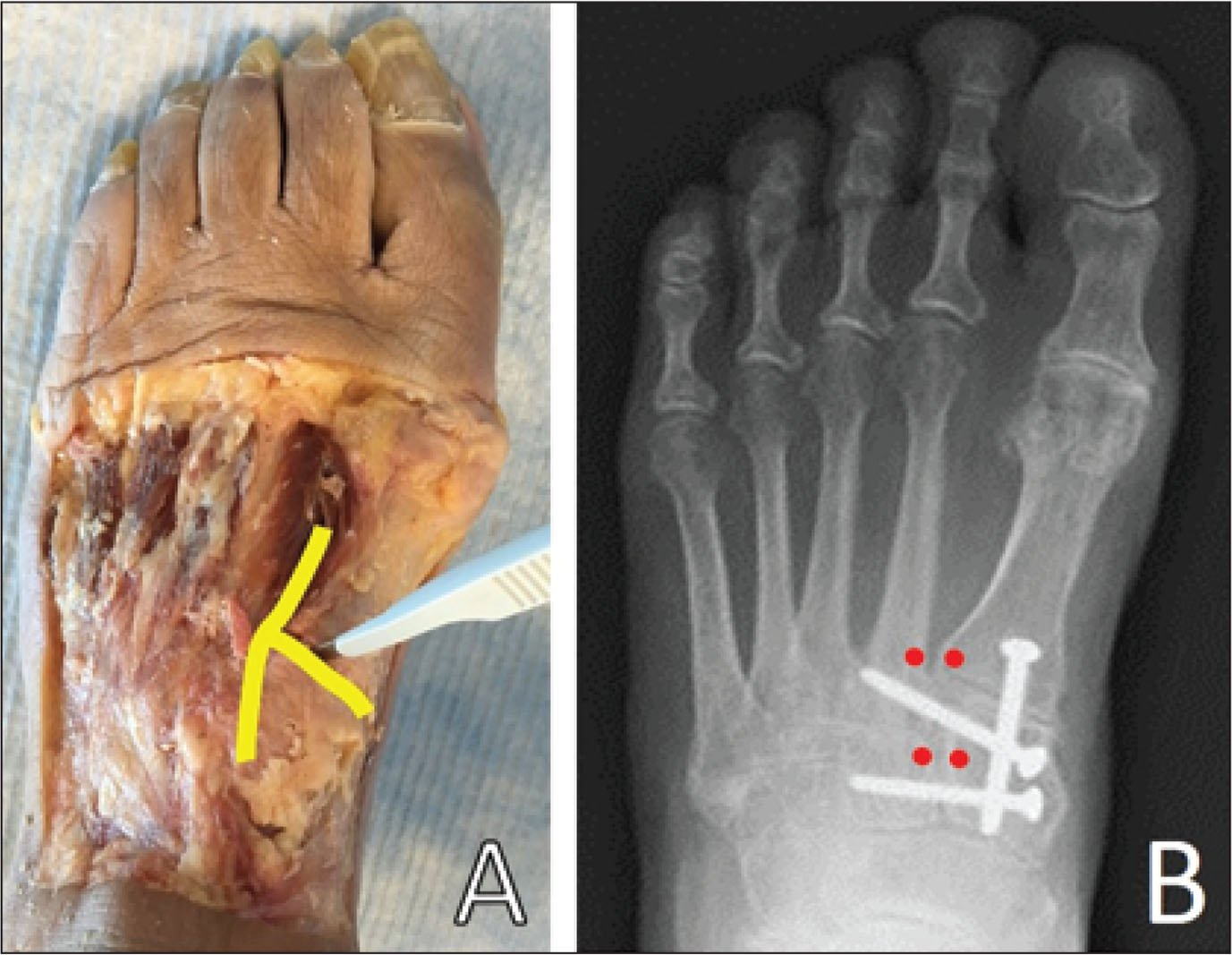 Photograph of a dissected midfoot. The yellow line represents the path taken with a scalpel to create the complex Lisfranc injury (A). A proximal/distal radiograph of a reconstructed Lisfranc injury that uses 3 fully threaded solid cortical screws. The red dots represent the locations of virtual landmarks for the determination of diastasis between the metatarsal and cuneiform bones at the base of the first metatarsal, the metaphyseal flare of the second metatarsal, and the midpoint of the medial and middle cuneiforms (B).