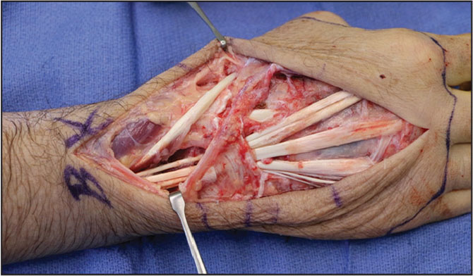 Index surgery after debridement: incision and drainage. Intraoperative findings included a white/tan gelatinous material encasing extensor compartments 2 to 5 extending proximal to the extensor retinaculum and tendons intact without fraying. Cultures grew Mycobacterium fortuitum.