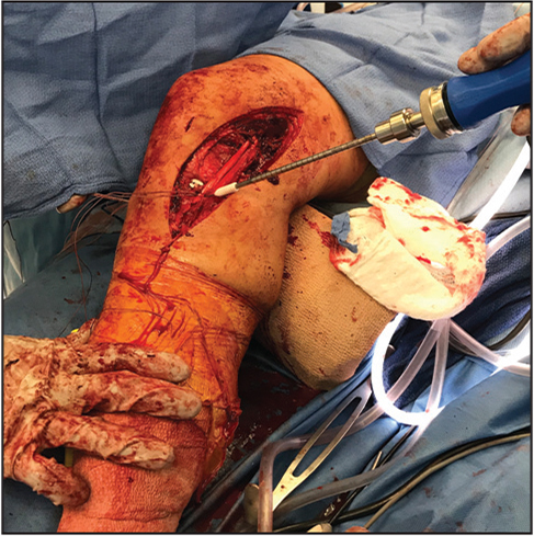 An interference screw is placed into the tibial tunnel.