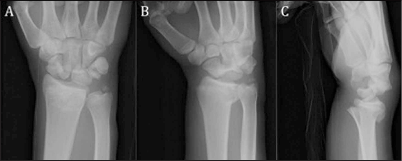 Anteroposterior (A), oblique (B), and lateral (C) radiographs of a left wrist showing a transscaphoid, transtriquetral perilunate fracture-dislocation associated with a distal radius fracture.
