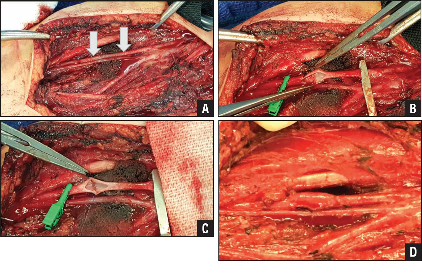 Intraoperative images of the brachial artery repair. Exposure of the brachial artery (arrows) (A). The brachial artery clamped and incised (B). Repair of the intima (C). Basilic vein patch used to repair the brachial artery (D).
