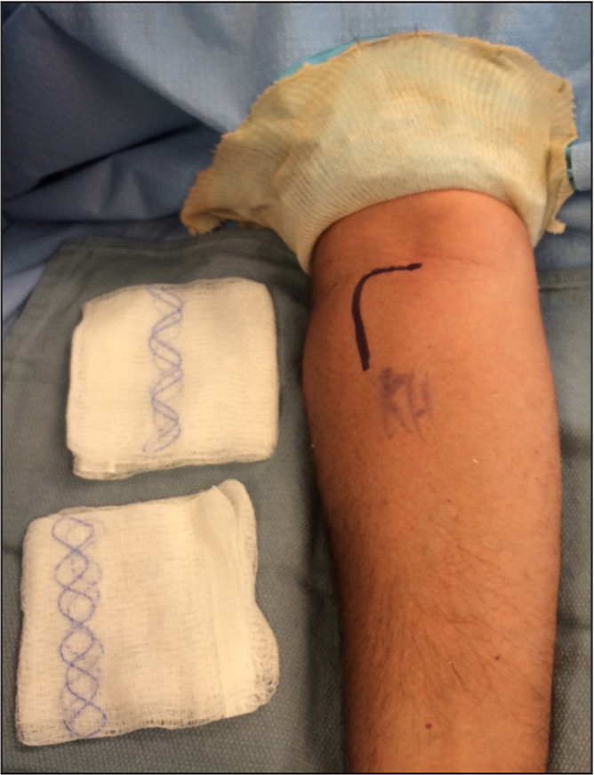 Photograph showing the authors' preferred positioning for prepping, draping, and incision for distal biceps repair. A sterile tourniquet is placed on the arm prior to final extremity drape application and hidden beneath a stockinette.
