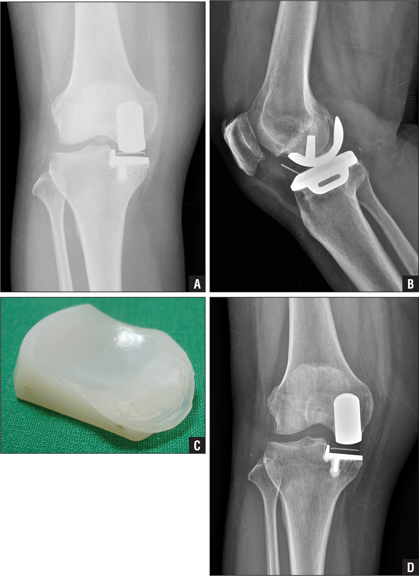 Postoperative anteroposterior radiograph showing well-aligned femoral and tibial components (A). Lateral radiograph showing the mobile meniscal bearing dislocated anteriorly (B). Photograph of the retrieved meniscal bearing showing macroscopic wear on its superior articular surface in the posterior edge (C). Anteroposterior radiograph after exchange of the worn meniscal bearing with a thicker bearing (D).