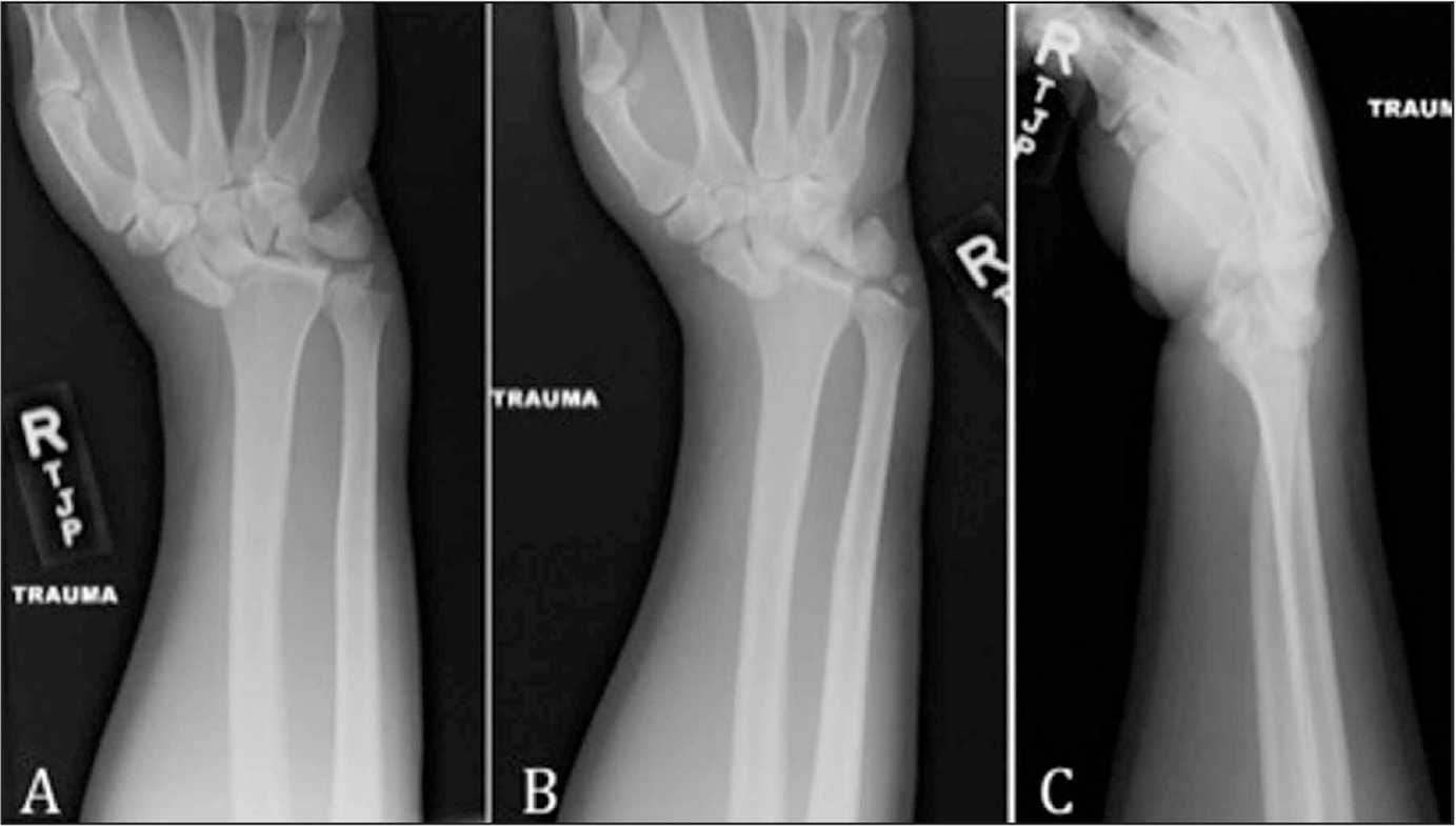 "A stage IV lunate dislocation. Note the ""piece of pie"" sign on the anteroposterior (A) and oblique (B) radiographs and the ""spilled teacup"" sign on the lateral (C) radiograph."