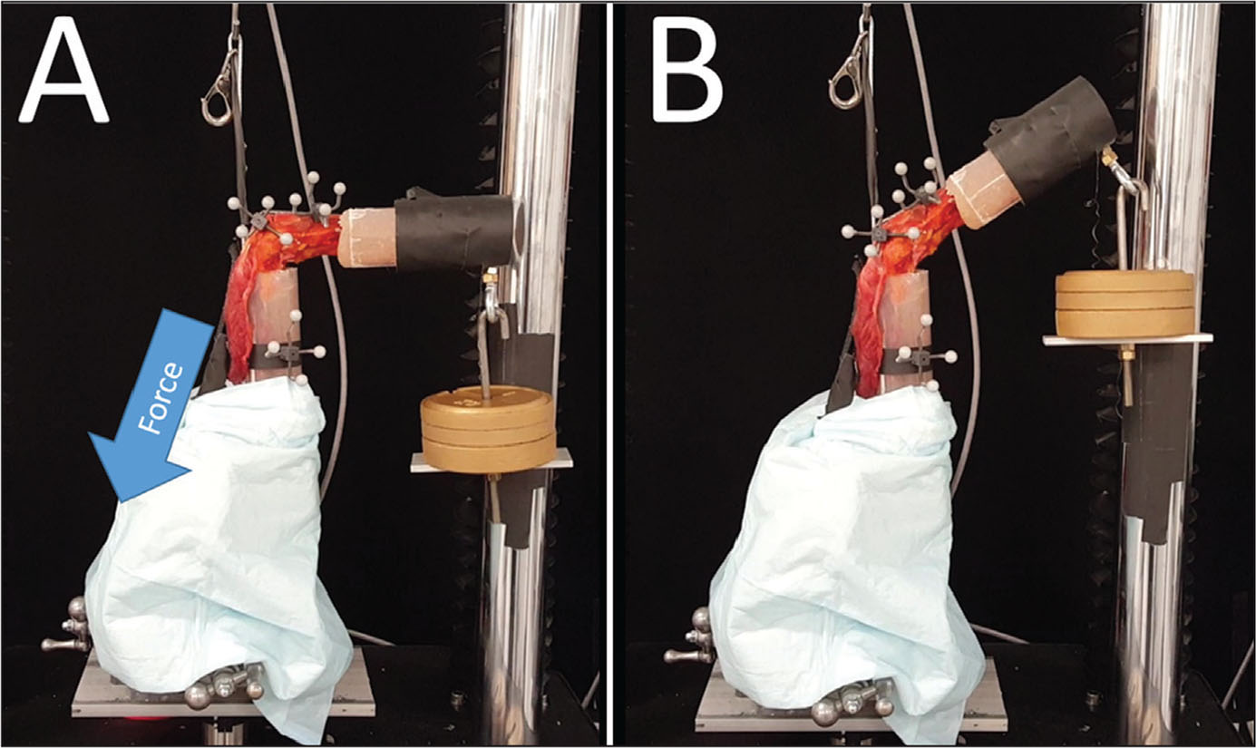 Photographs of the biomechanical testing setup. Displacement of a steel cable attached to the triceps tendon creates a downward force, indicated by the arrow (A). The application of the force results in elbow extension (B).