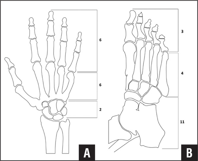 Diagrams showing the relative distribution of 32 acrometastases in the hand (A) and foot (B) among 28 patients.
