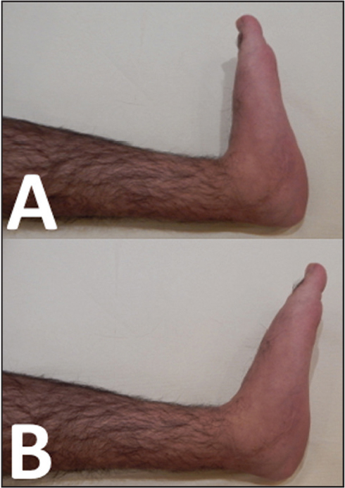 Photographs of the patient's foot showing asymptomatic ankle dorsiflexion (A) and plantarflexion (B).