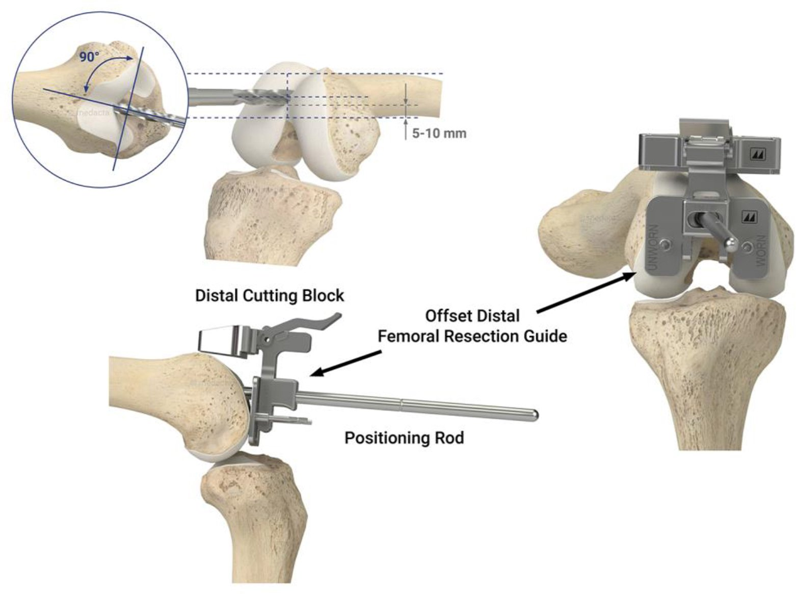 Schematic shows the method for limiting flexion of the femoral component that results in a negligible risk of patellofemoral instability44–46. Start the drill hole midway between the anterior limit of the notch and the anterior cortex of the femur (short blue dotted line). Orient the drill perpendicular to a plane coincident to the distal surface of the femur and parallel with the anterior cortex of the femur. A starting point that keeps a 5–10 mm bone bridge between the posterior rim of the drill hole and the top of the intercondylar notch limits flexion of the femoral component to within 1° ± 2° with respect to the anatomic axis of the distal femur45.