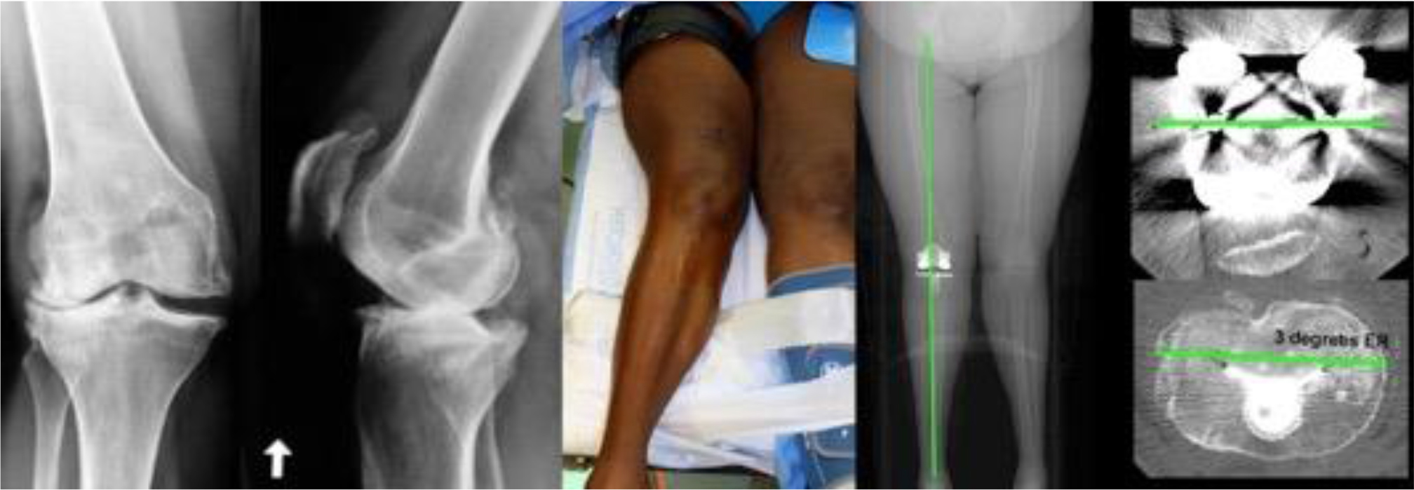 Composite shows the preoperative radiographs of the knee with severe valgus deformity, intraoperative photograph of the severe valgus deformity, postoperative computer tomographic scanogram of the limb, and axial views of the femoral and tibial components. The kinematically aligned TKA restored the alignment of the tibial joint line, knee, Q-angle, and limb close to those of the contralateral or native limb without release of the lateral collateral or lateral retinacular ligament in this patient with an intact posterior cruciate ligament.