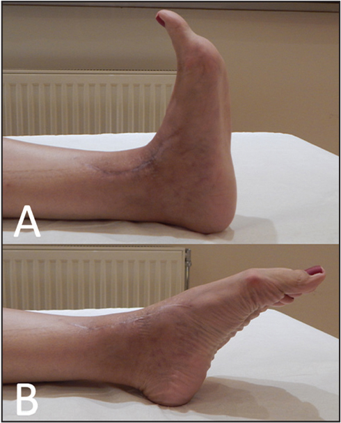 Excellent range of ankle motion: 5° of dorsiflexion (A) and 40° of plantarflexion (B).