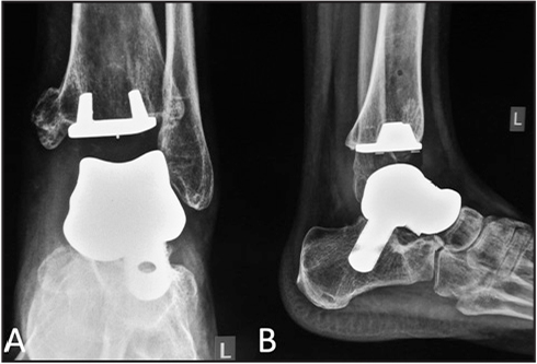 Anteroposterior (A) and lateral (B) radiographs of the left ankle at 3.5 years postoperatively demonstrating no signs of implant loosening.