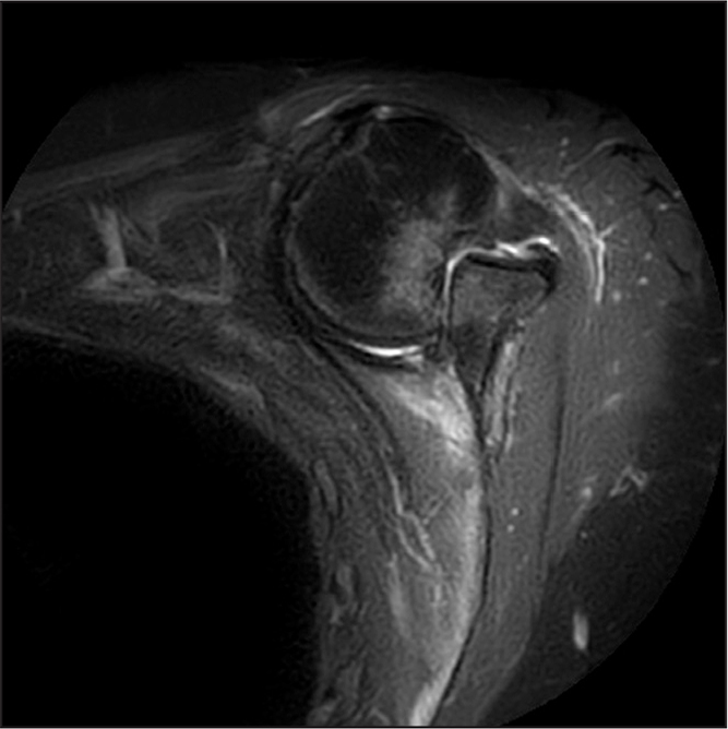 A 50-year-old patient with an anterior shoulder dislocation 2 months previously. She had a reduction in the emergency department on the day of injury but reported re-dislocation after she was released. She was instructed to follow up with the local orthopedic surgeon. Early evaluation would have led to reduction and stabilization; however, 2 months later, she underwent delayed open reduction and graft reconstruction.