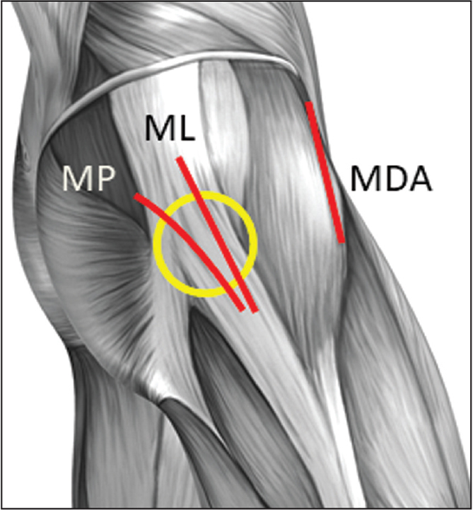 Lateral diagram of the hip showing the area of high compression between the iliotibial band and greater trochanter (yellow circle) and superficial muscle dissection for mini posterior (MP), mini anterolateral (ML), and mini direct anterior (MDA) approaches. The mini posterior and mini anterolateral approaches extend through the iliotibial band fascia over the greater trochanter, whereas the MDA does not.
