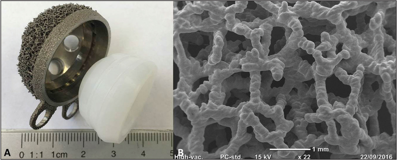 Custom-made trabecular acetabular shell created using selective laser melting (A). Scanning electron microscopy image of the titanium trabecular lattice (Traser; Permedica S.p.A., Merate, Italy) of the acetabular shell (B).