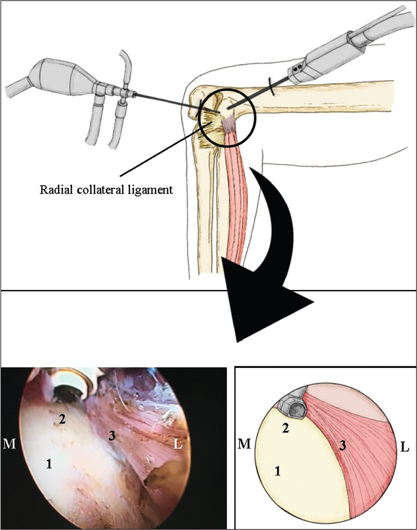 Disinsertion of the extensor carpi radialis brevis tendon in a right elbow in lateral decubitus using a radiofrequency probe. General view (top). Arthroscopic view (bottom left) and its schema (bottom right). Abbreviations: L, lateral edge; M, medial edge; 1, posterior aspect of the lateral epicondyle; 2, disinsertion of the extensor carpi radialis brevis using proximal/medial to lateral movement of the radiofrequency probe; 3, extensor carpi radialis brevis.