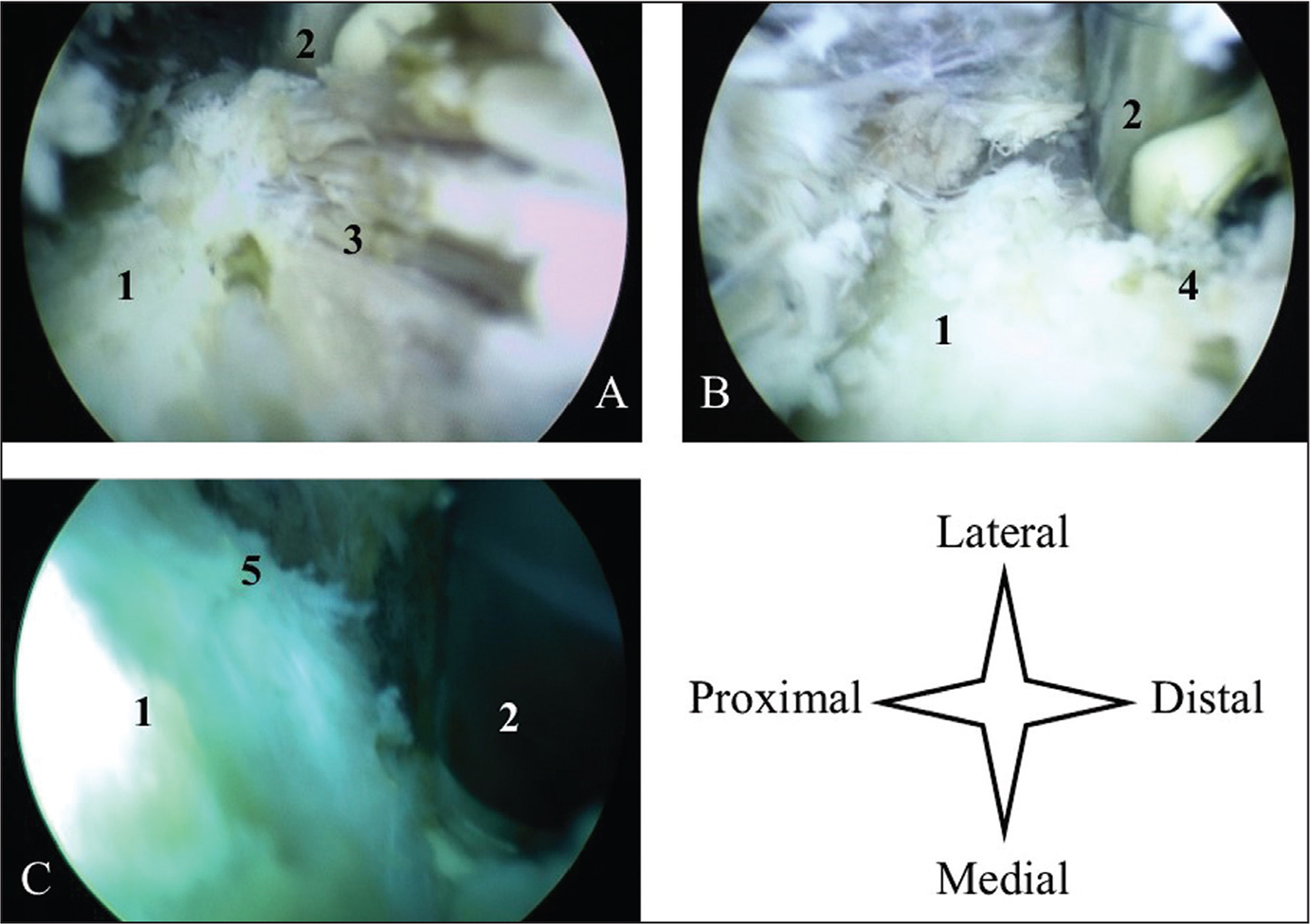 Intraoperative arthroscopic photograph of the extensor carpi radialis brevis disinsertion in a right elbow in lateral decubitus. Extensor carpi radialis brevis origin just before disinsertion (A). Arthroscopic photograph of the extensor carpi radialis brevis origin after disinsertion (B). Arthroscopic photograph showing view just after the extensor carpi radialis brevis disinsertion (C). Abbreviations: 1, posterior aspect of the lateral epicondyle; 2, radiofrequency probe; 3, extensor carpi radialis brevis; 4, extensor carpi radialis brevis footprint after disinsertion; 5, lateral crest of the epicondyle visible after extensor carpi radialis brevis disinsertion with a distal posterolateral look.