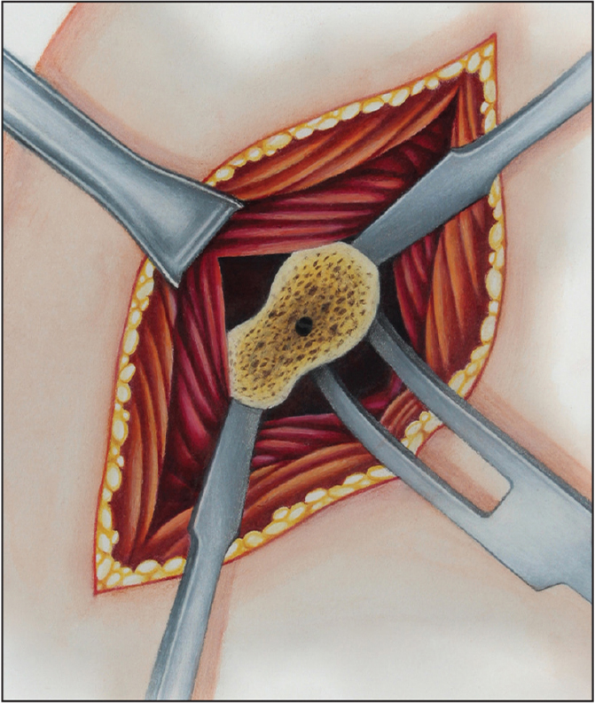 Direct glenoid access. (Copyright Julie Ranels. Used with permission.)