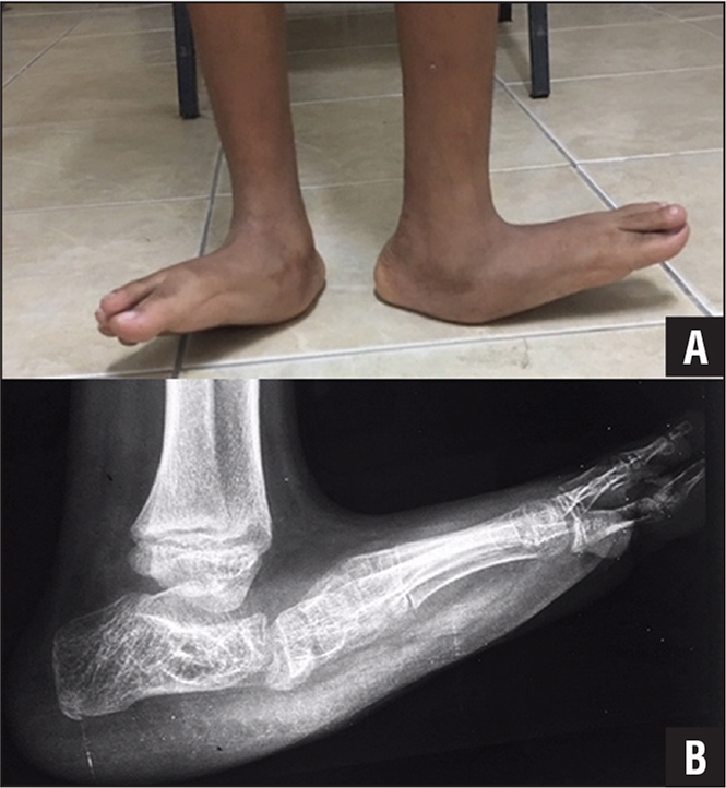 Preoperative standing photograph (A) and lateral radiograph of the left foot (B). Note severe rocker-bottom deformities and externally rotated feet.