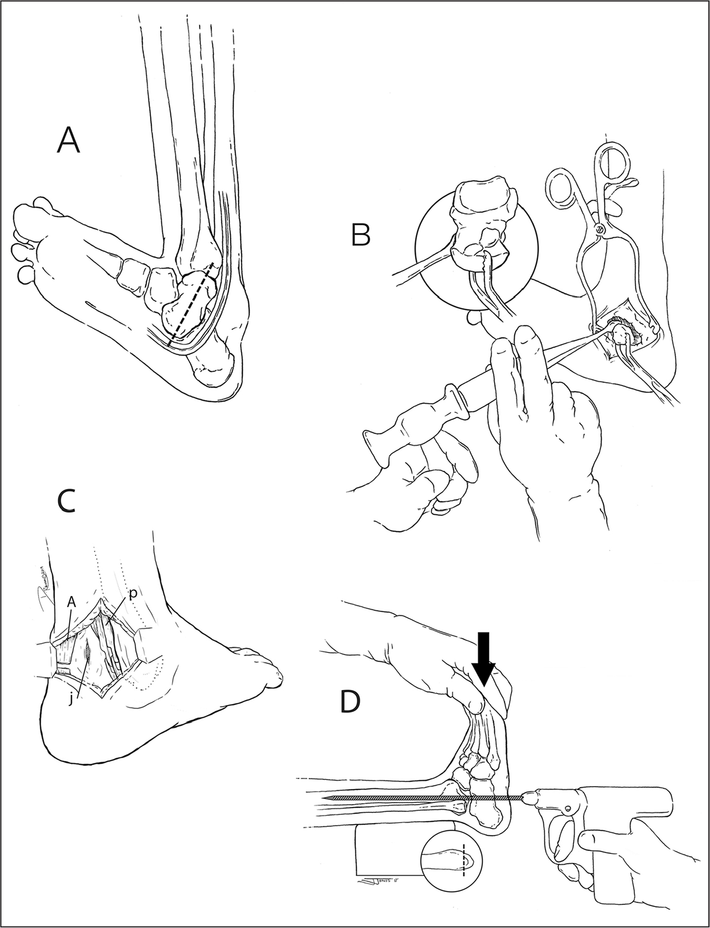 Illustration of the medial surgical approach (A). Skin incision (broken line) along the long axis of the vertical talus. Note the neurovascular structures adjacent to the talar head. Removal of the talus with the aid of a towel clamp and an elevator. Insert shows a close-up of talus removal (B). Posterolateral ankle incision. Achilles 1-cm excision tenotomy (a), peroni tendons lengthening (p), and ankle joint arthrotomy (j) (C). Foot position in the ankle joint. Arrow indicates the posterior displacement of the foot to create a heel. A Steinmann pin is placed retrograde across the ankle joint to hold the neutrally positioned foot in place. Insert shows distal excision of fibula bone (D). (© Danielle Robinson. Used with permission.)